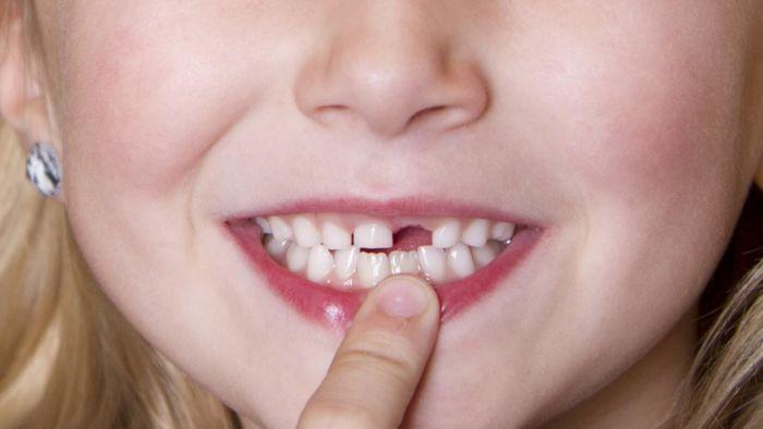 Nằm mơ thấy rụng răng là điềm gì, đánh con gì?