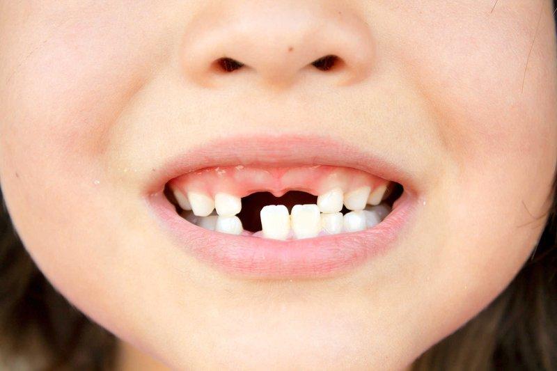 Giải mã giấc mơ thấy rụng răng khôn có ý nghĩa gì?